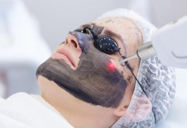 Carbon Laser Peel